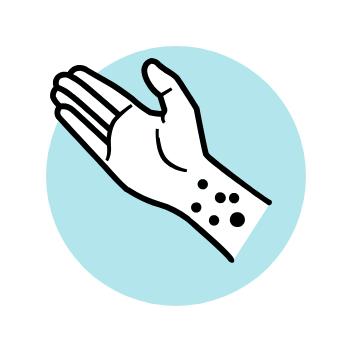 Eczema flare-ups