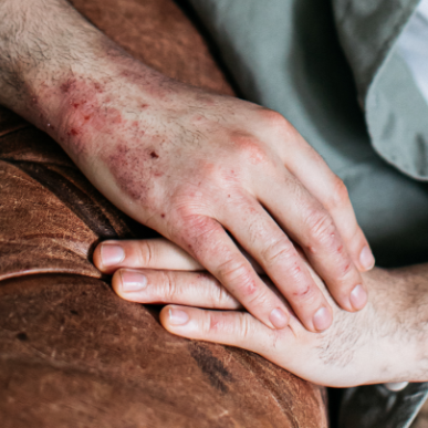 Moisturising Dry, Eczema Prone Skin